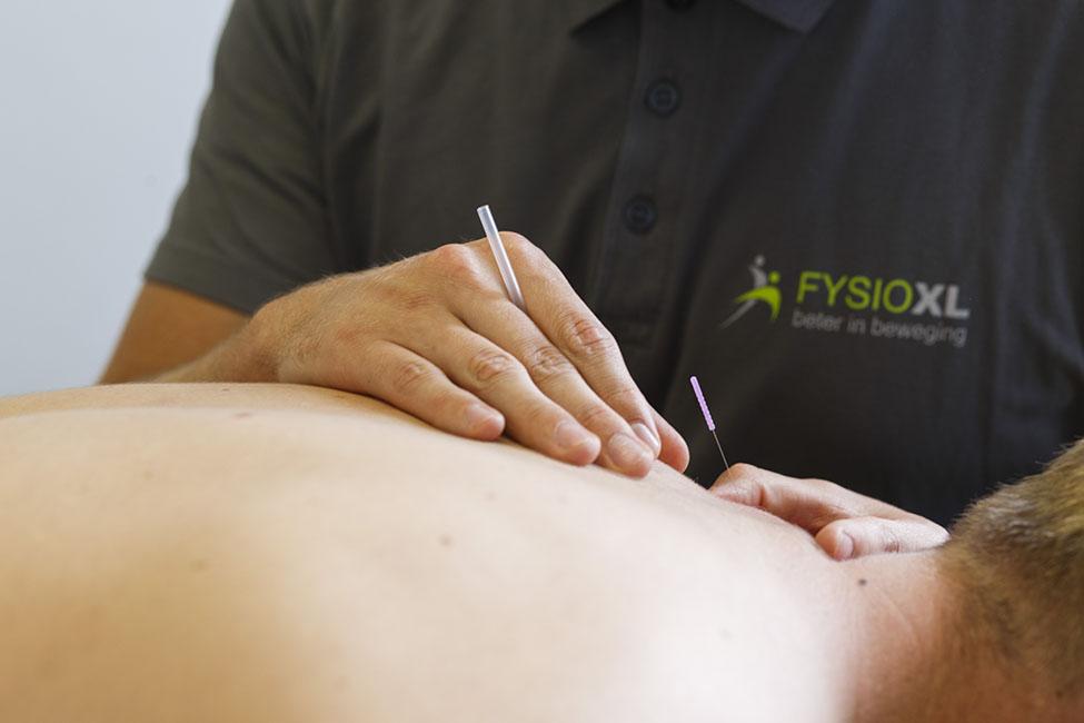 Rugklachten behandeling met dry needling